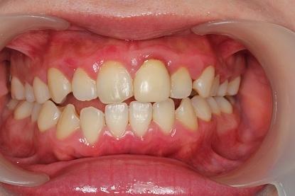 歯ブラシ指導前